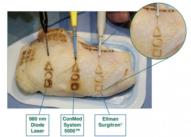 Радиохирургическое лечение шейки матки 1