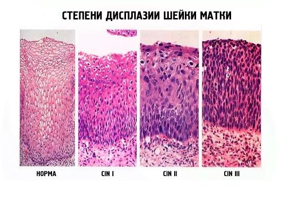 Биопсия шейки матки на какой день цикла делают