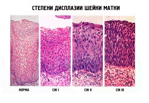 Цитологическое исследование мазков шейки матки расшифровка инвитро — АНТИ-РАК