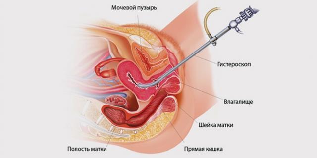 После гистероскопии болит низ живота