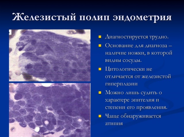 Гистология после удаления полипа в матке 12