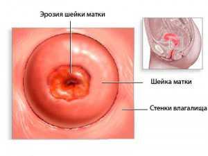 Что прижигают в гинекологии