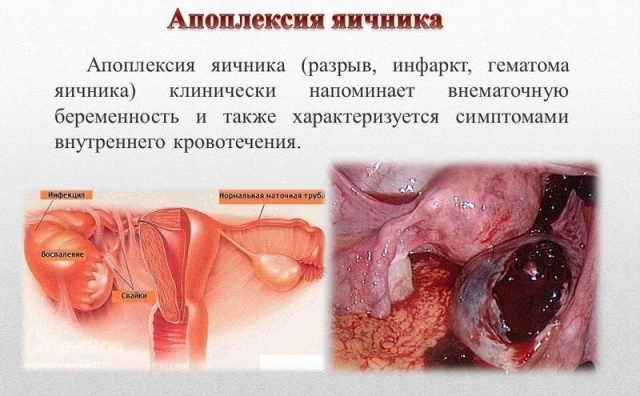 Разрыв матки секс