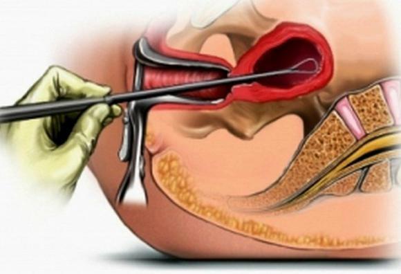 Как делают чистку матки — Мой гинеколог