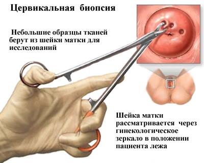 Папилломы в полости матки