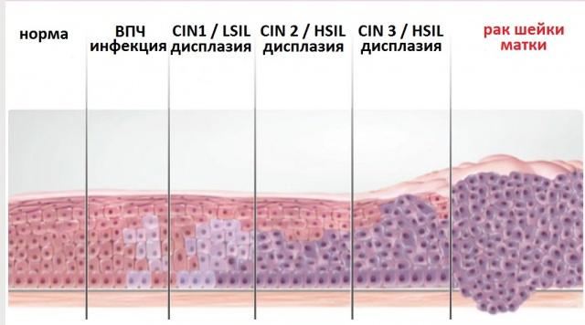 Что такое пролиферация железистого эпителия в гинекологии