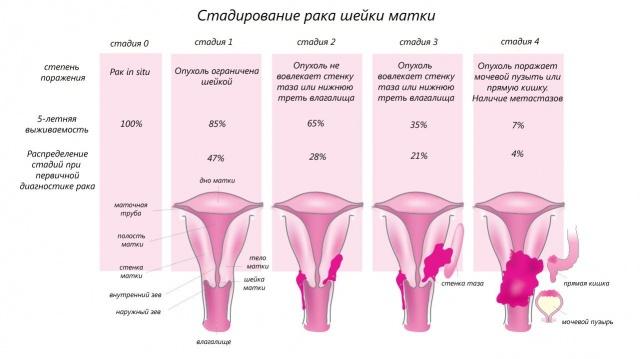 Рак шейки матки - причины, симптомы, диагностика и лечение, прогноз
