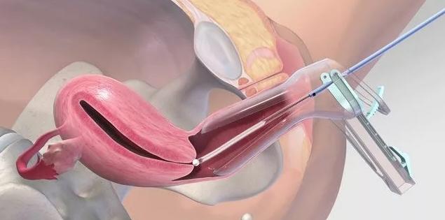 Пайпель биопсия эндометрия — как и зачем берут аспират из матки