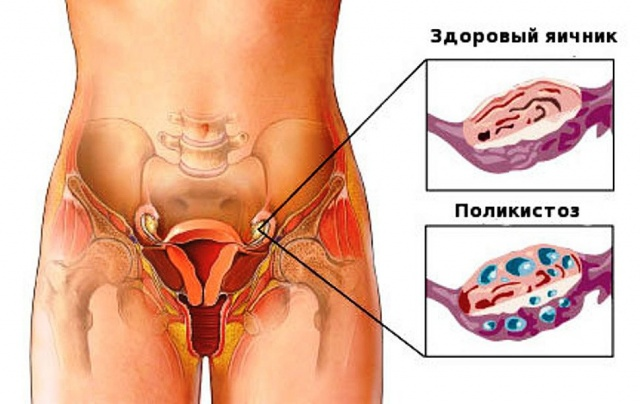 Болит яичник после овуляции (правый или левый)