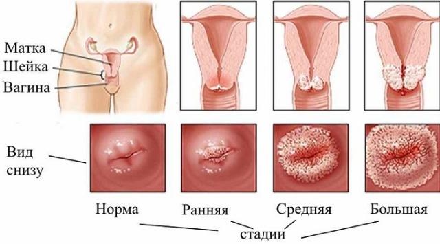 ВПЧ и эрозия шейки матки: опасность папилломавируса, лечение