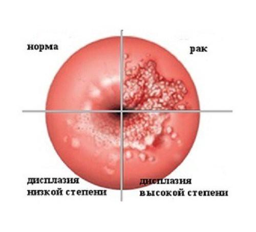 Дисплазия шейки матки 1 степени лечение