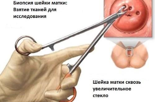 Кровь после биопсии шейки матки