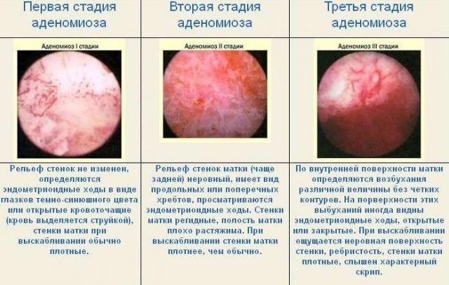 Бады при аденомиозе — Центр женского здоровья