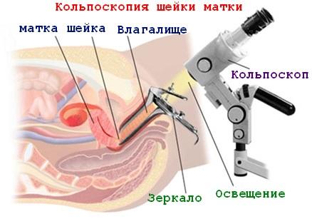 Сукровица после биопсии шейки