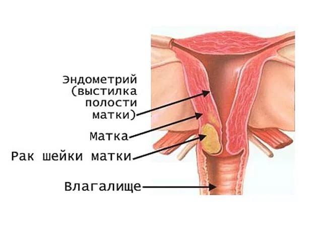 Лечение рака шейки матки 1 стадии