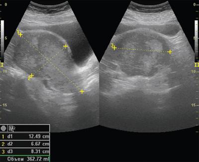 Рак матки, рак эндометрия - о причинах, симптомах, диагностике и профилактике, а также о методах борьбы с заболеванием. Сайт хирурга К.В. Пучкова