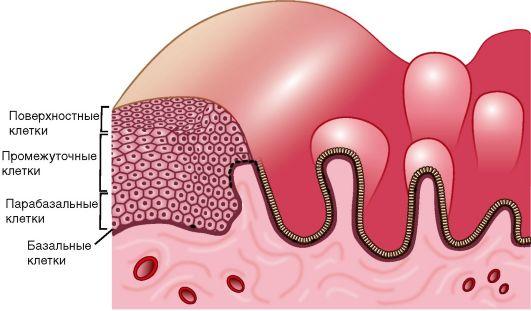 Цервикальный канал эпителий норма