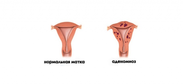 Шарообразная форма матки