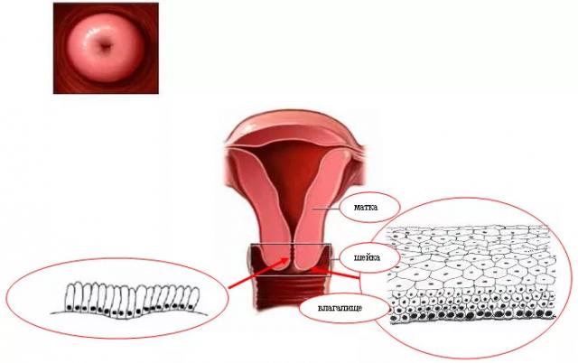 Какие анализы нужны для биопсии шейки матки — АНТИ-РАК