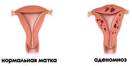 Кровотечение во время менопаузы