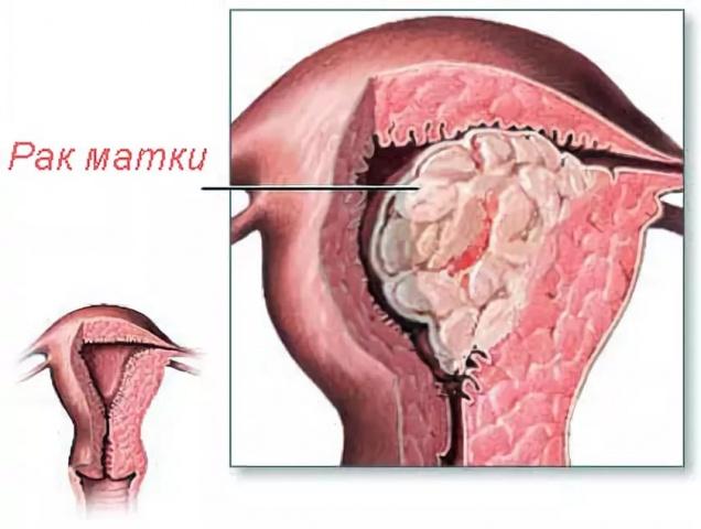 Лечение рака матки: лучевая терапия, химиотерапия, облучение опухоли матки