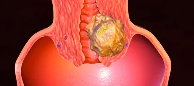 Рак матки 2 стадия лечение
