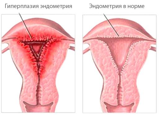 Эндометрий средней стадии фазы пролиферации