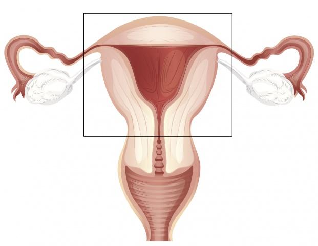 Ампутация матки: ход операции, последствия