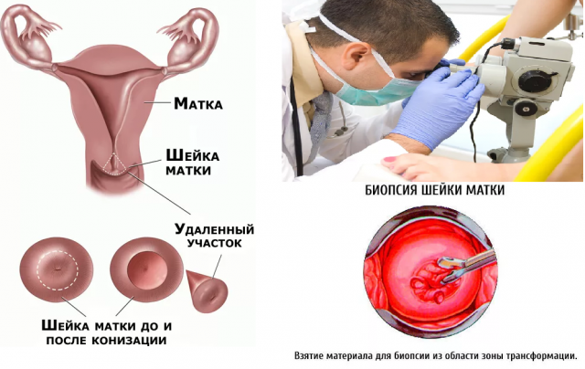 Биопсия шейки матки рекомендации