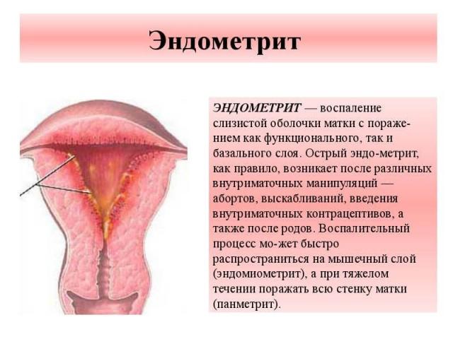Опасно ли выскабливание матки