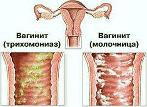 Можно пить при молочнице трихопол — Центр женского здоровья