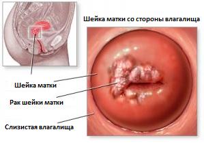 Лечение рака шейки матки 3