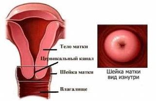 Что такое цервикальный канал у женщин фото