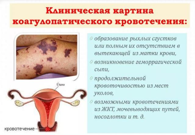 Ановуляторное маточное кровотечение - причины, симптомы, диагностика и лечение