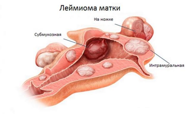 Интрамуральная лейомиома матки что это такое лечение