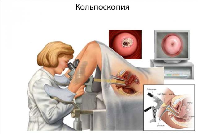 Кольпоскопия шейки матки: как и для чего проводится