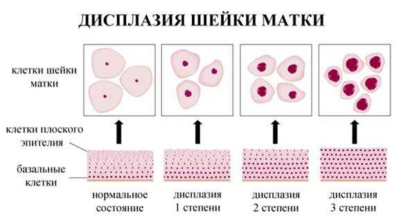 Успешное лечение дисплазии шейки матки 3 степени без операции с гарантией результата