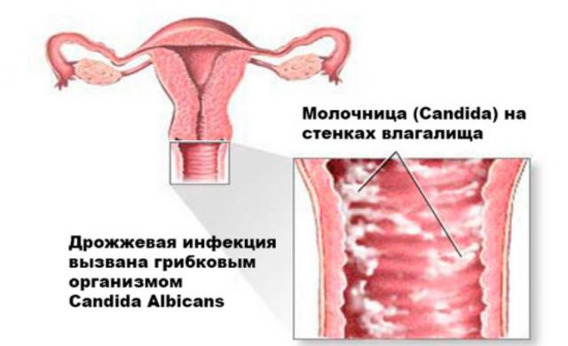 Препарат гинофорт от молочницы