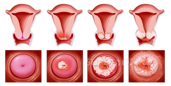 Признаки онкологии по женски (симптомы)
