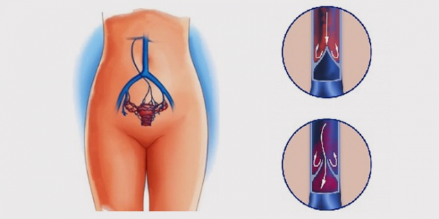 Лекарство при варикозном расширении вен матки