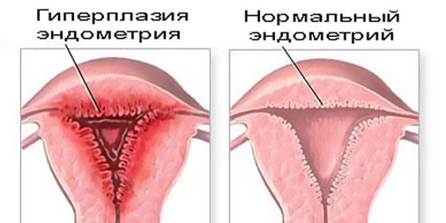 Эндометрий ранней стадии фазы секреции что это