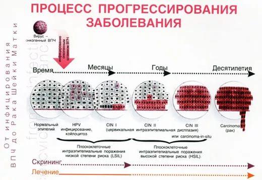 Вирус папилломы человека у женщин в гинекологии