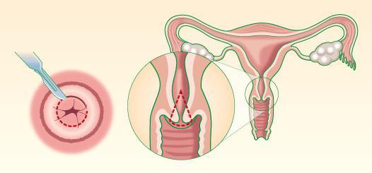 После биопсии шейки матки идет кровь