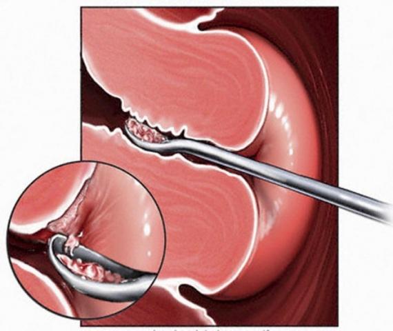 На какой день цикла делают пайпель биопсию эндометрия — LiveAcademy