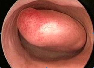 Гистероскопия матки - что это такое, как часто можно делать