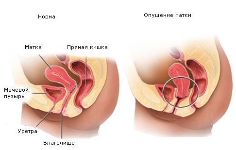Опущение матки противопоказания - Гинекология  - Каталог статей