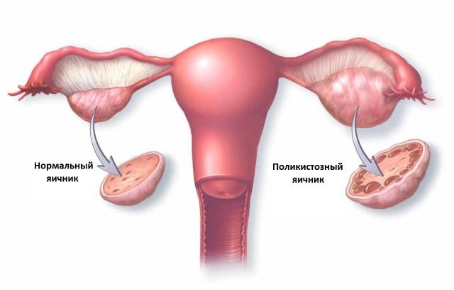 Гиперпластический процесс эндометрия: что он собой представляет
