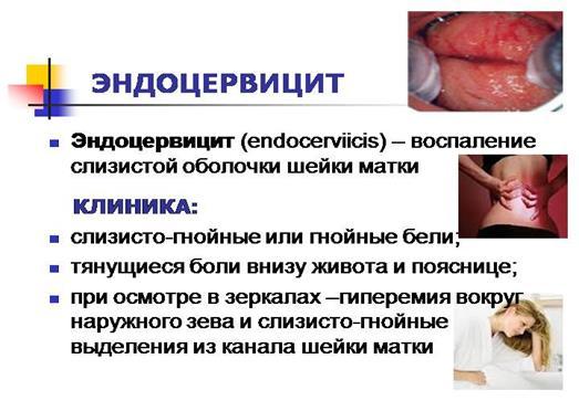 Эндоцервицит что это такое симптомы лечение народными средствами