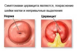 Цервицит 3 степени - Женские болезни