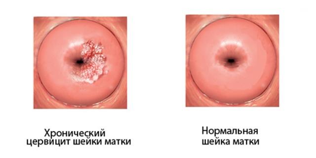 Воспаление шейки матки (цервицит) - причины, симптомы и лечение